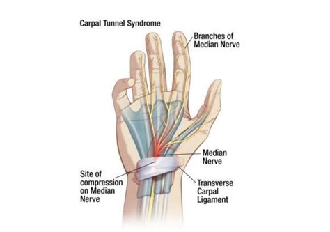 Thesis carpal tunnel syndrome jpg 738x520