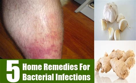 5 home remedies for vaginal bacterial infection fight jpg 650x400