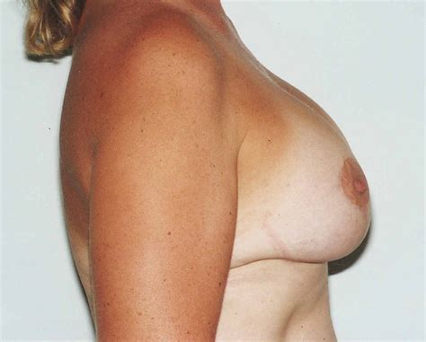 moderate ptosis with breast augmentation photos jpg 1139x917